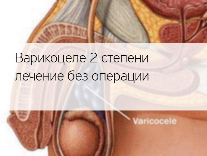 Варикоцеле 2 степени лечение без операции