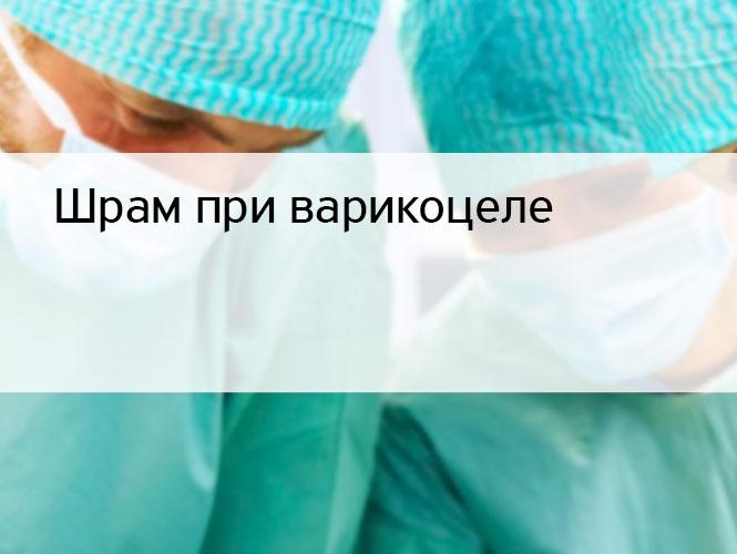 Шрам при варикоцеле