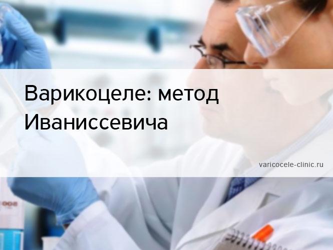 Варикоцеле: метод Иваниссевича