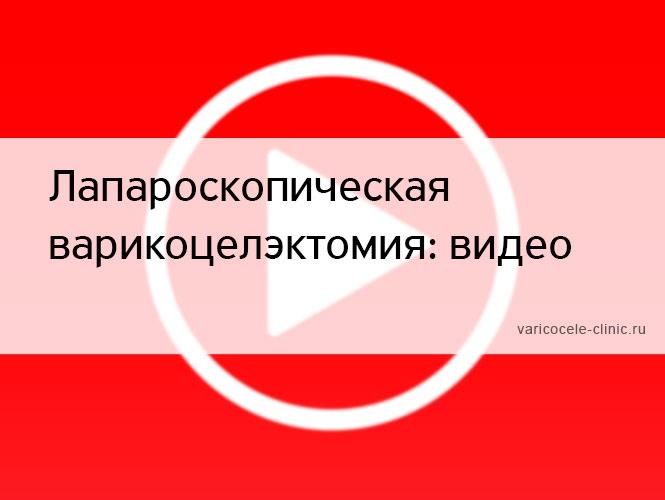 Лапароскопическая варикоцелэктомия: видео