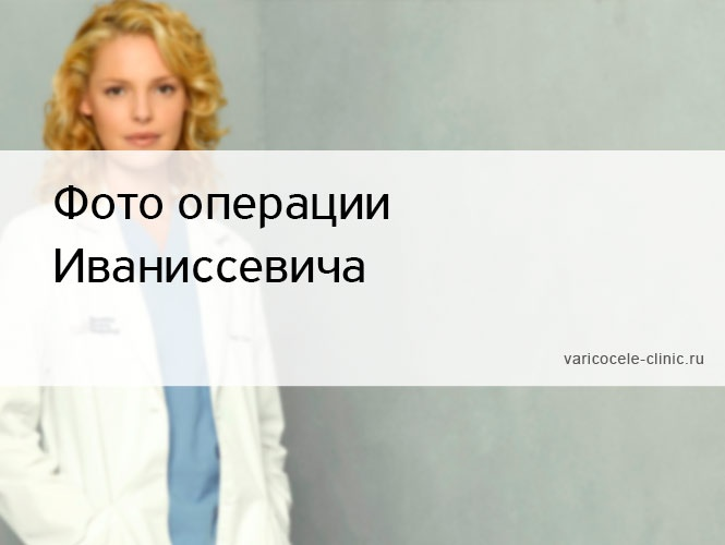 Фото операции Иваниссевича