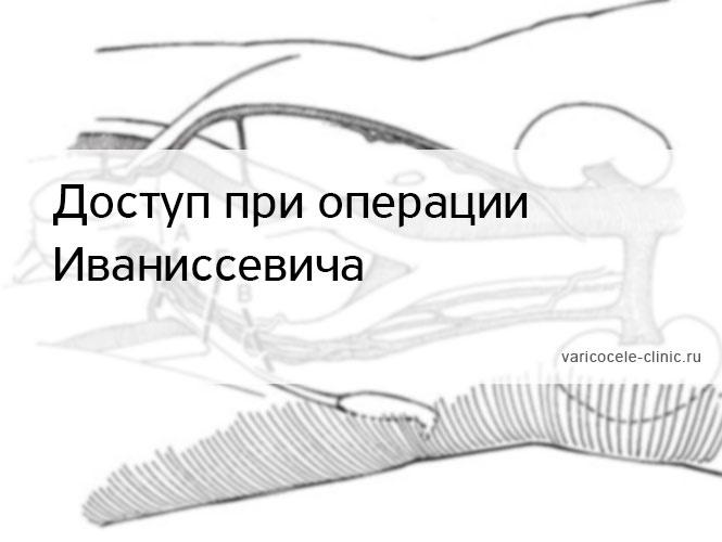 Доступ при операции Иваниссевича