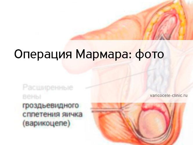 Операция Мармара: фото