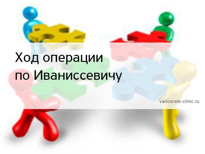 Ход операции по Иваниссевичу