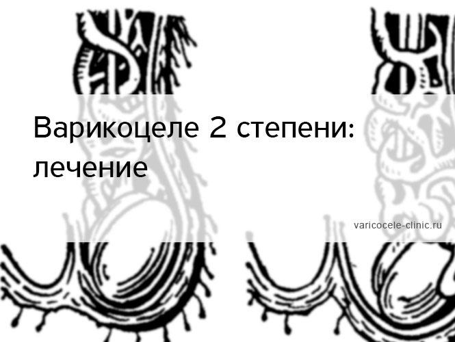 Варикоцеле 2 степени: лечение