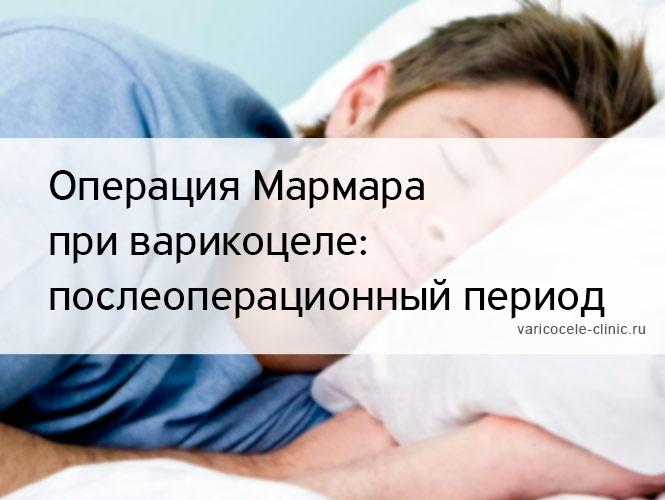 Операция Мармара при варикоцеле: послеоперационный период