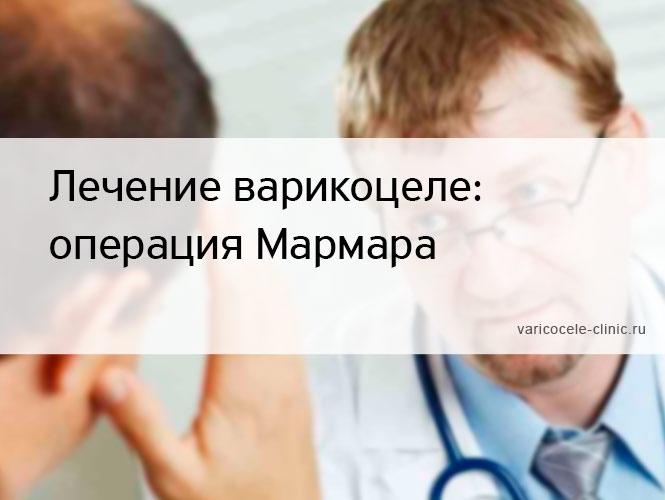 Лечение варикоцеле: операция Мармара