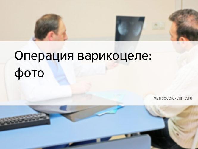 Операция варикоцеле: фото