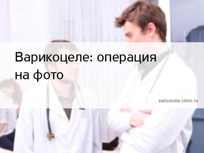Варикоцеле: операция на фото