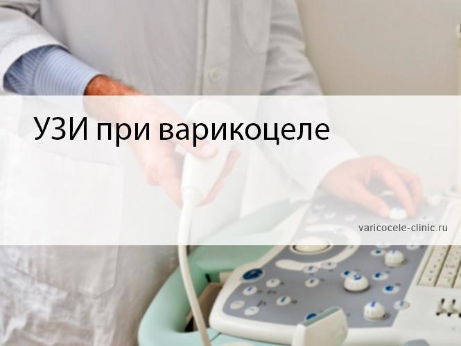 УЗИ при варикоцеле