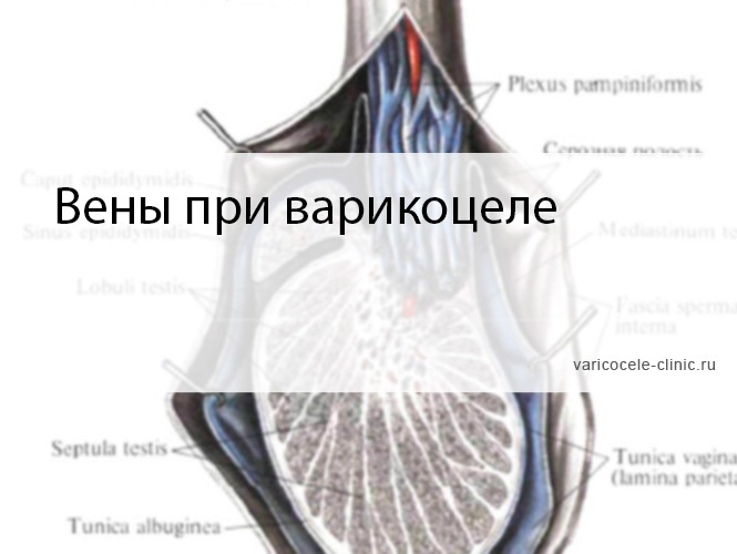Вены при варикоцеле