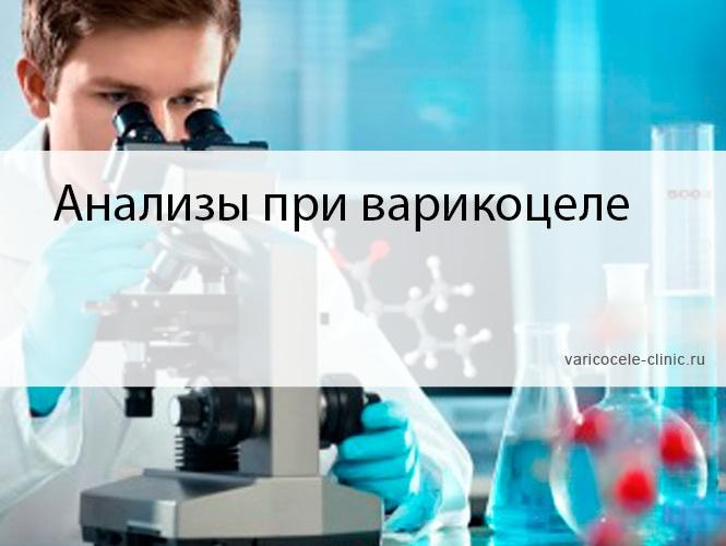 Анализы при варикоцеле