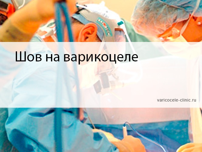 Шов на варикоцеле