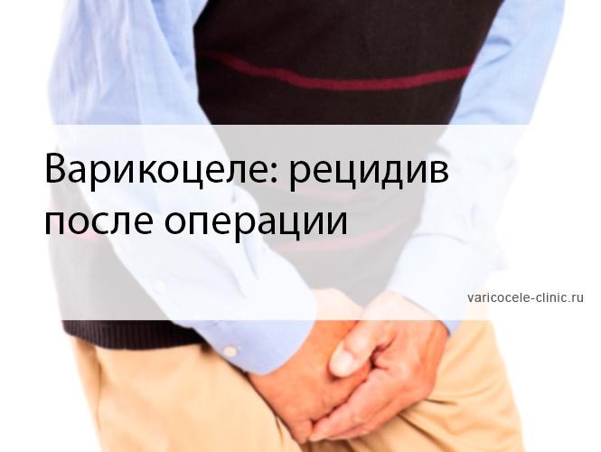 Варикоцеле: рецидив после операции