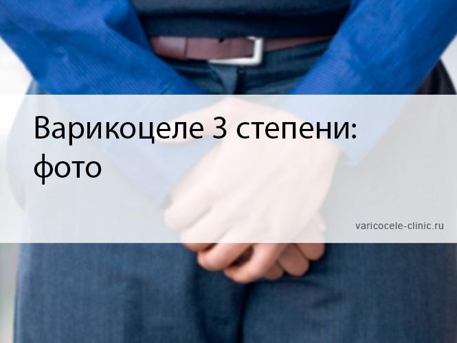 Варикоцеле 3 степени: фото