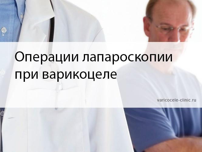 Операции лапароскопии при варикоцеле