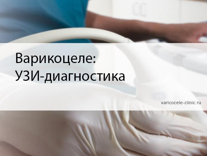 Варикоцеле: УЗИ-диагностика