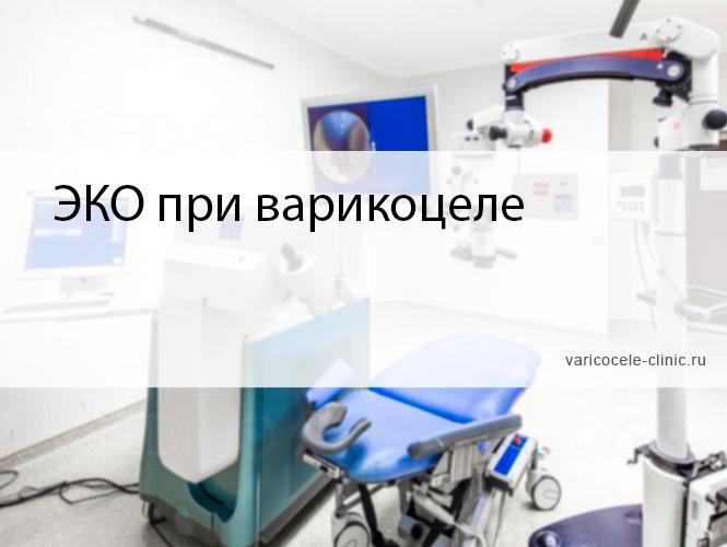 ЭКО при варикоцеле
