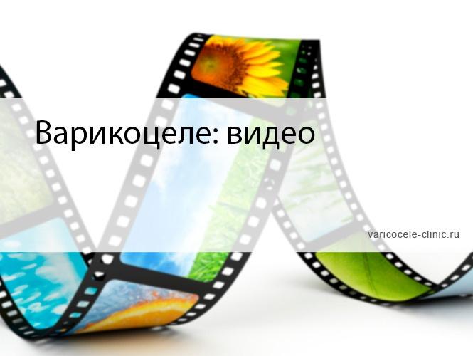 Варикоцеле: видео