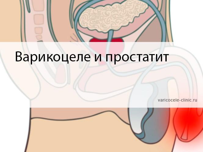 Варикоцеле и простатит в чем связь китайская медицина от простатита