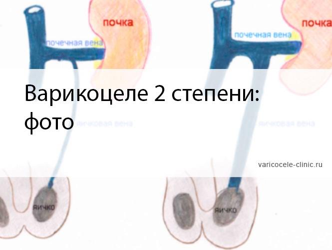 Варикоцеле 2 степени: фото