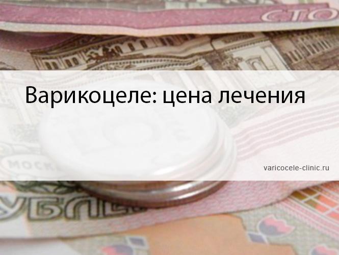 Варикоцеле: цена лечения