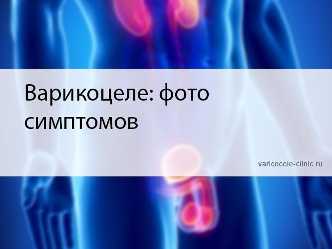 Варикоцеле: фото симптомов