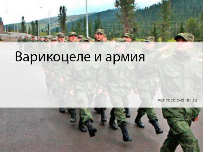 Варикоцеле и армия