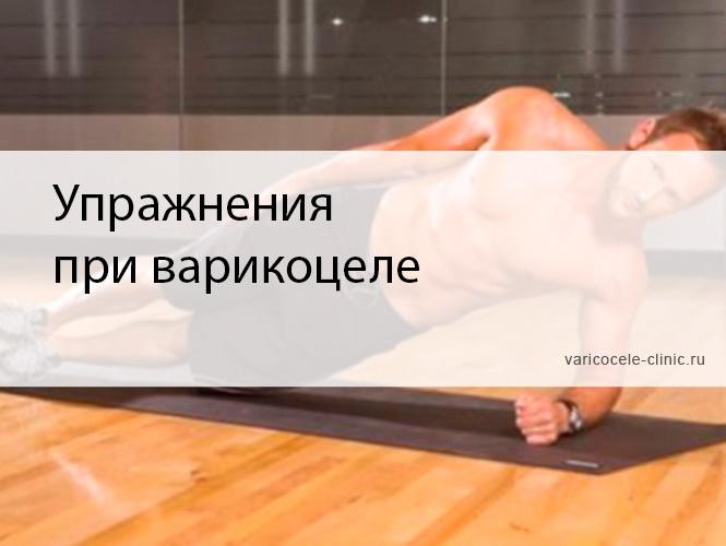 упражнения при варикоцеле комплекс упражнений