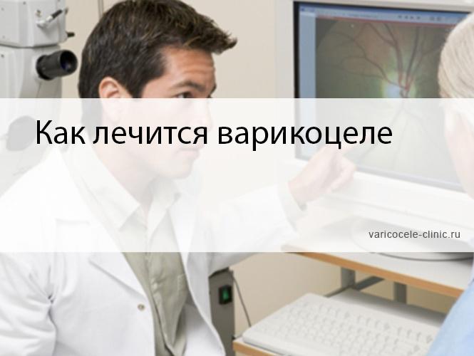 Как лечится варикоцеле