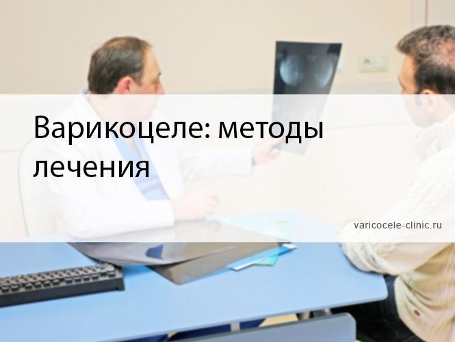 Варикоцеле: методы лечения