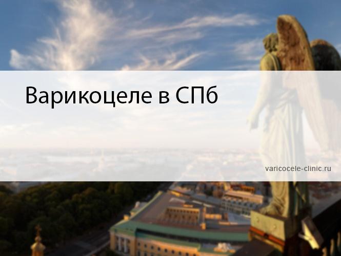 Варикоцеле в СПб