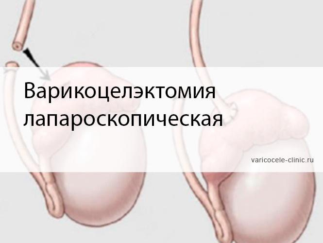Варикоцелэктомия лапароскопическая