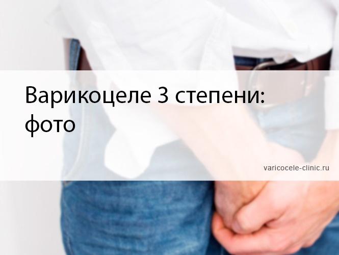 Массаж яичек при варикоцеле