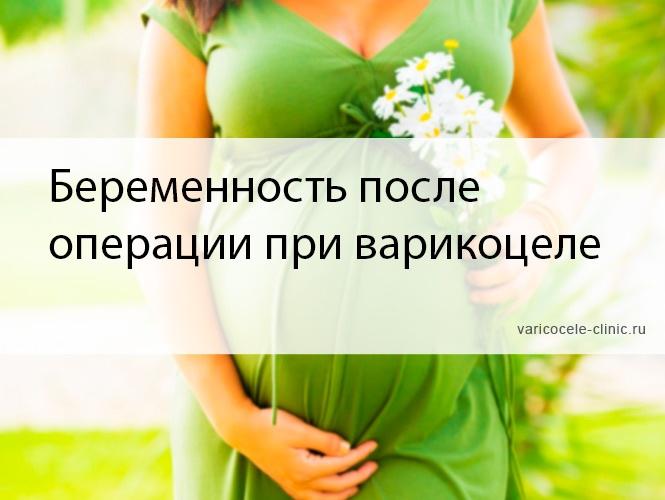Беременность после операции при варикоцеле